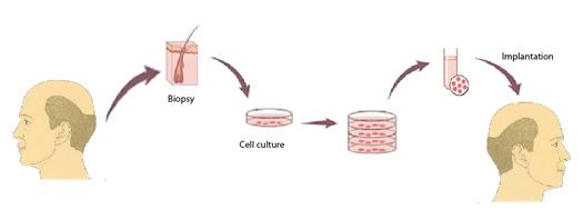 Cellule Staminali Pilifere o clonazione del Bulbo Pilifero